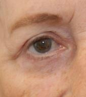 chirurgie yeux blépharoplastie bayol lyon